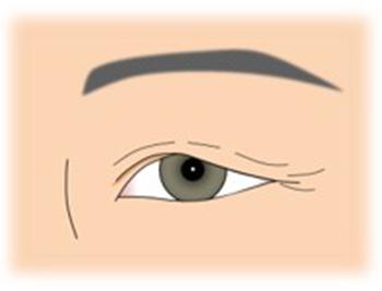 イメージ:眼瞼皮膚弛緩