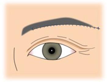 イメージ:眉毛下皮膚切除