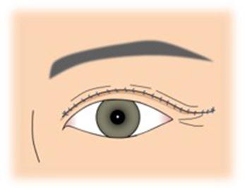 イメージ:二重線部皮膚切除