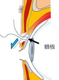 イメージ:瞼を上げる筋肉