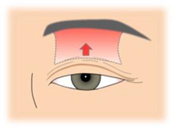イメージ:眼瞼下垂手術1