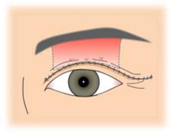 イメージ:眼瞼下垂手術4