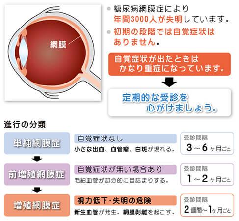 図:糖尿病網膜症について