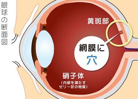 図:黄斑円孔