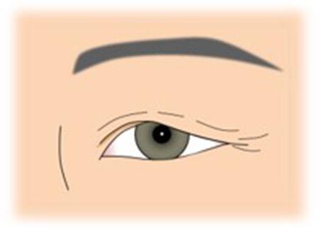 図:眼瞼下垂について