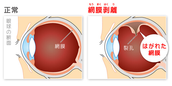 図:網膜剥離について