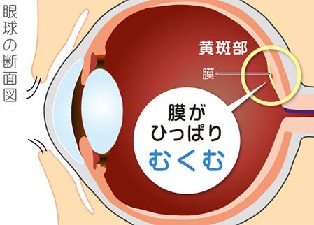 図:黄斑上膜について