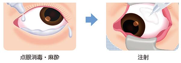イメージ:硝子体注射について